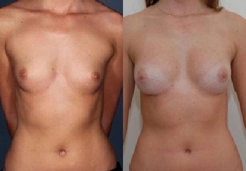 intervento di mastoplastica additiva verona del chirurgo pasquale adilardi