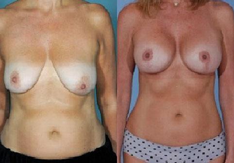 intervento al seno mastopessi eseguito dal chirurgo adilardi